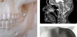 Anatomie humaine montant la mâchoir pour illustrer les problèmes d'ATM, soit les troubles de l'articulation temporomandibulaire