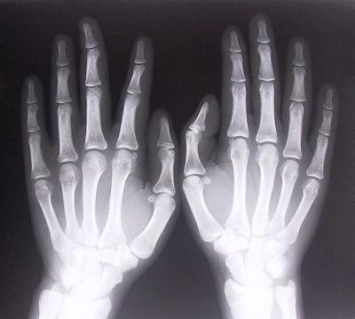 Articulations qui craquent illustrées par des mains au rayon X